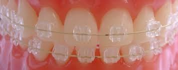 Прозрачные брекеты на зубы