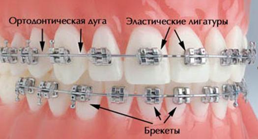 установка брекет системы в СПб