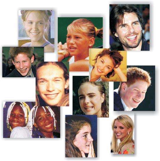 Знаменитости, носившие брекеты