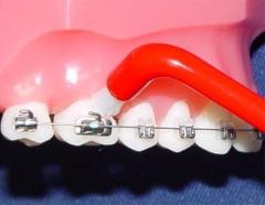 Как чистить зубы под брекетами